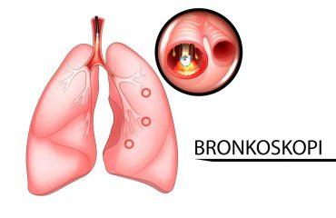 BRONKOSKOPI - 3-01