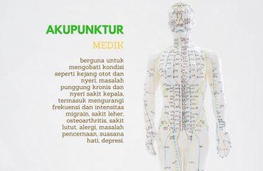 akupunktur aman untuk dilakukan