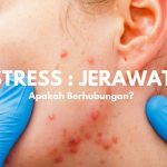 stress_dan_jerawat